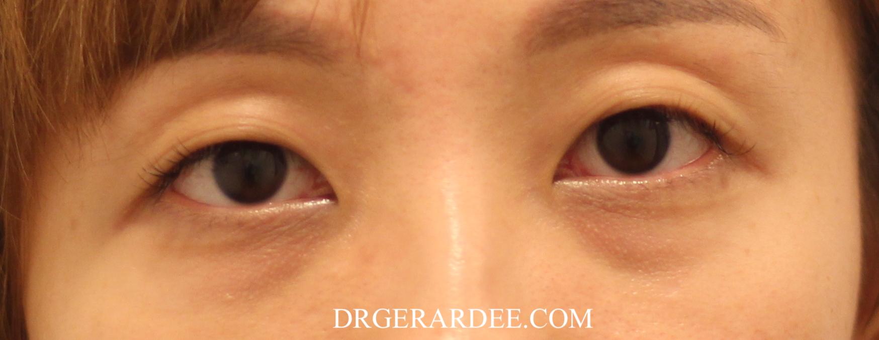 Dark Eye Circle Treatment